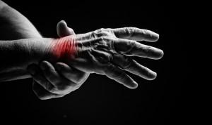 arthritis shutterstock_178383599